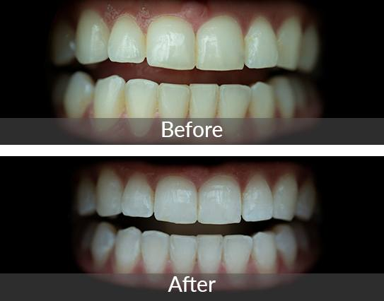before and after zoom whitening smiles